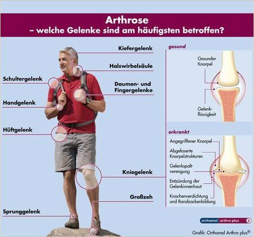 Gelenk- und Knochenerkrankungen